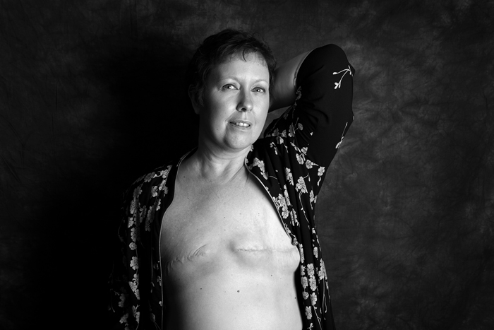 Mastectomy By Ami Barwell